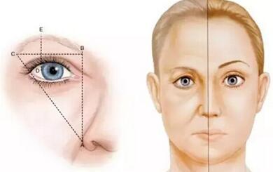 <b>长沙切眉术改善眉眼问题</b>
