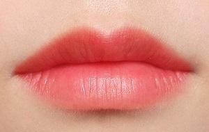<b>长沙厚唇改薄术你也可以拥有性感美唇</b>