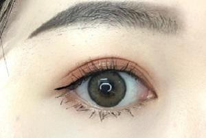 长沙做双眼皮修复术有哪些注意事项