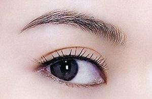 长沙提眉术有什么效果呢
