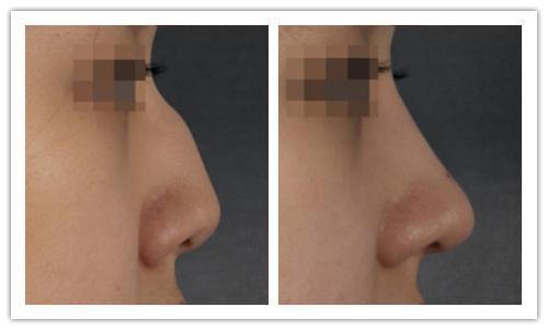 <b>长沙驼峰鼻矫正需要多少钱</b>