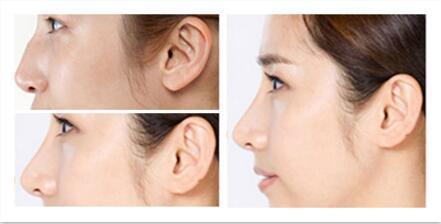 <b>长沙驼峰鼻矫正术需要多少时间恢复</b>