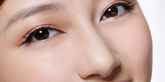 隆鼻修复的优势有哪些