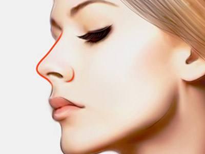 长沙隆鼻修复前的准备该怎么做